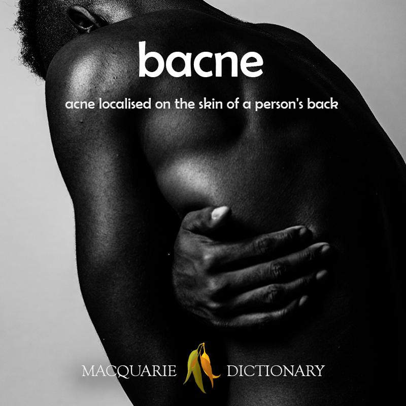 Image of definition of bacne: acne localised on the skin of a person's back